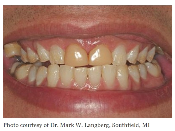 Teeth with the two front teeth having stained dental bonding
