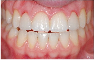 illustraing on lateral incisors inflammed by poorly done porcelain veneers