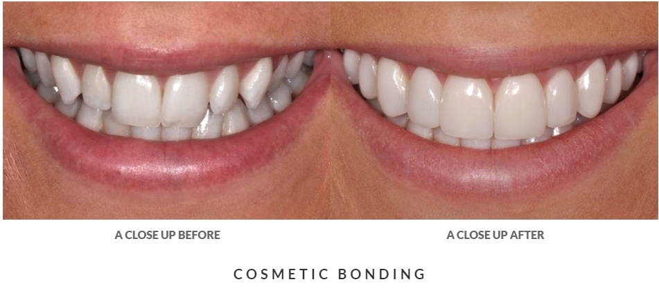 before and after dental bonding case