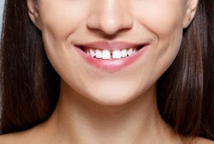 woman smiling with a gap between her two front teeth