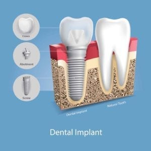 Illustration of a dental implant next to a natural tooth
