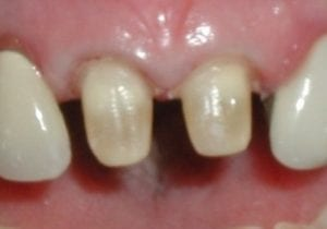 tooth preparation for a porcelain crown