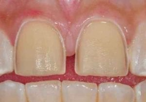 tooth preparation for porcelain veneers