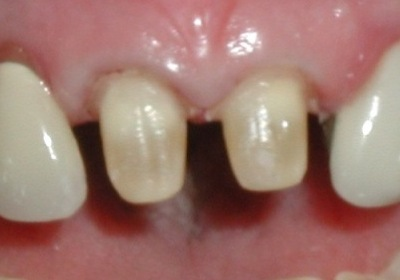 preparation for porcelain crowns