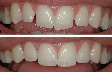 Before and after with dental contouring